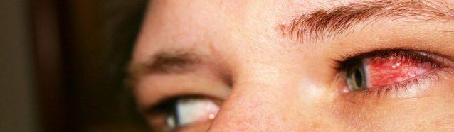 фото красного глаза при конъюнктивите