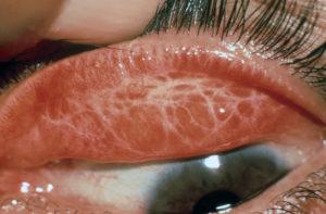 фото осложнения трахомы