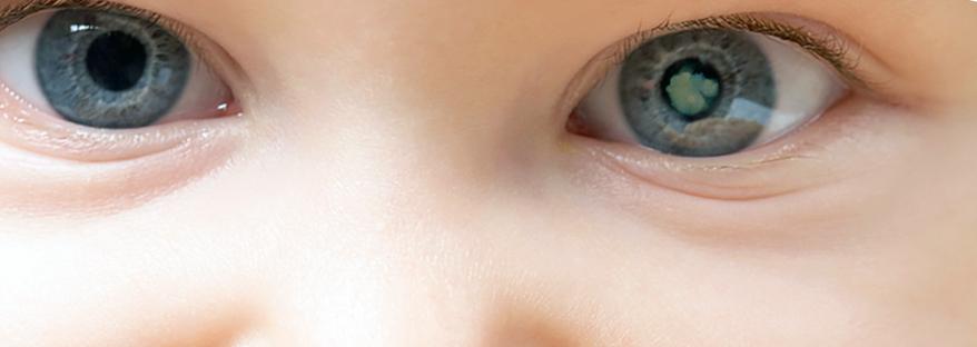 как выглядит врожденная катаракта глаз фото