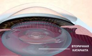 вторичная катаракта на схеме