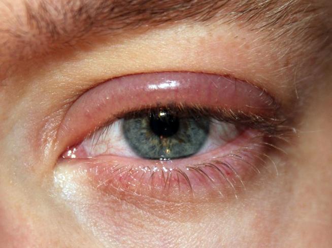 фото глаза с блефаритом
