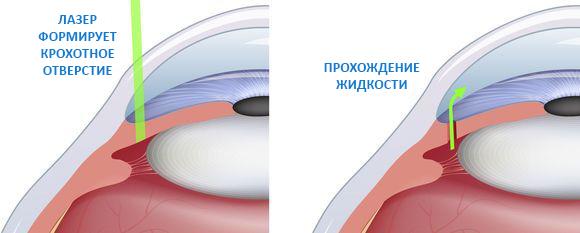 суть лазерной иридэктомии