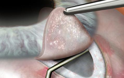 операция по лечению глаукомы