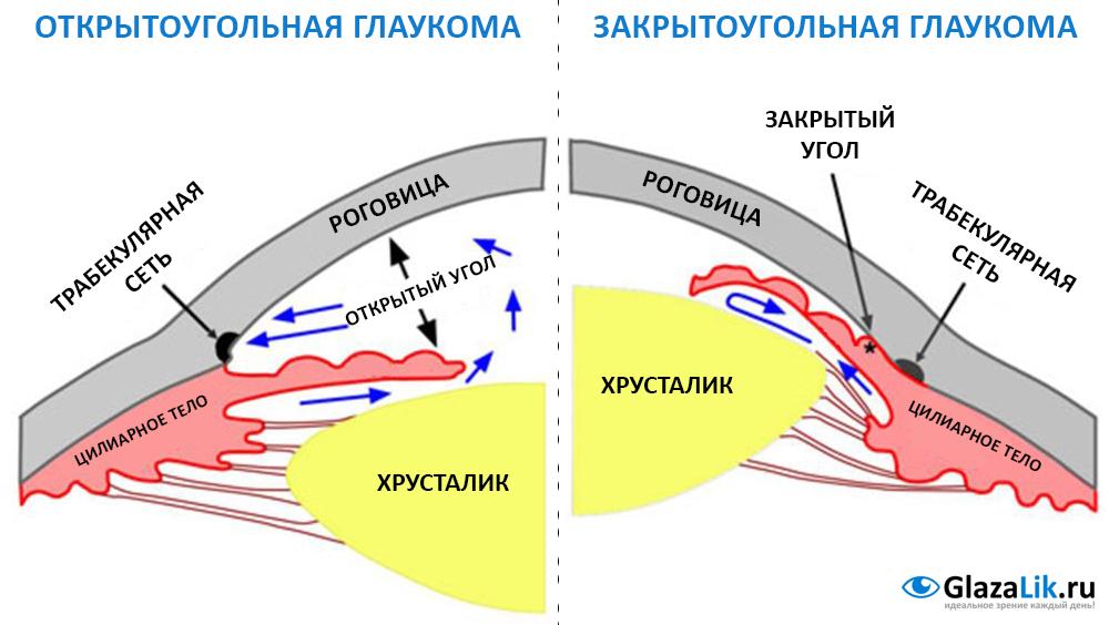 схема отличий закрытоугольной глаукомы от открытоугольной