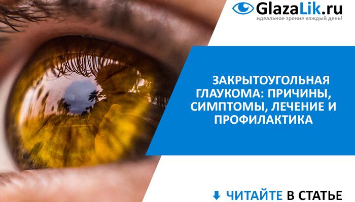 баннер для статьи о закрытоугольной глаукоме