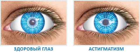 отличия здорового глаза и больного астигматизмом