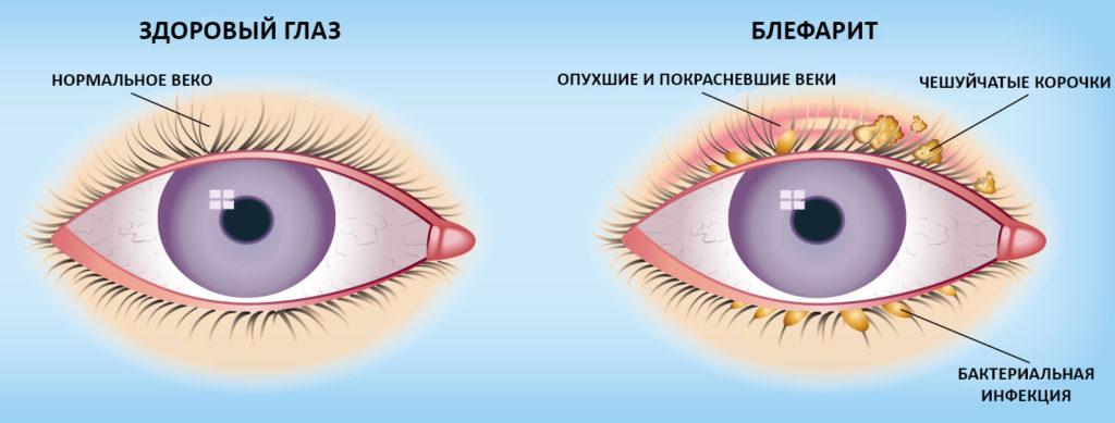 отличия блефарита от здорового глаза