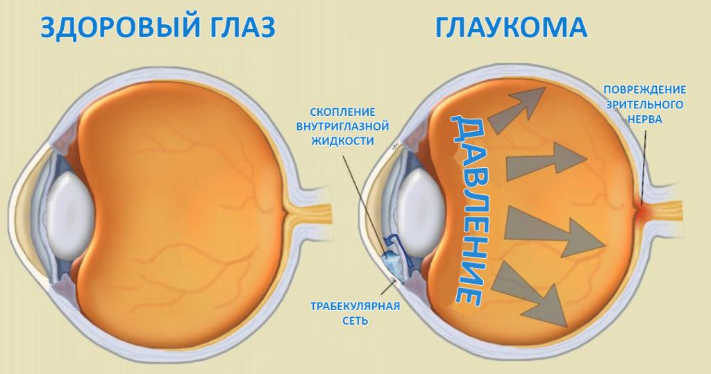 сравнение здорового глаза и больного глаукомой