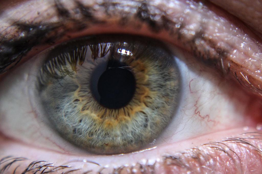 Офтальмология гетерохромия глаз