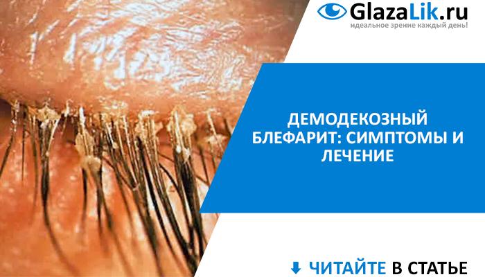 Демодекозный блефарит: симптомы и лечение в домашних условиях