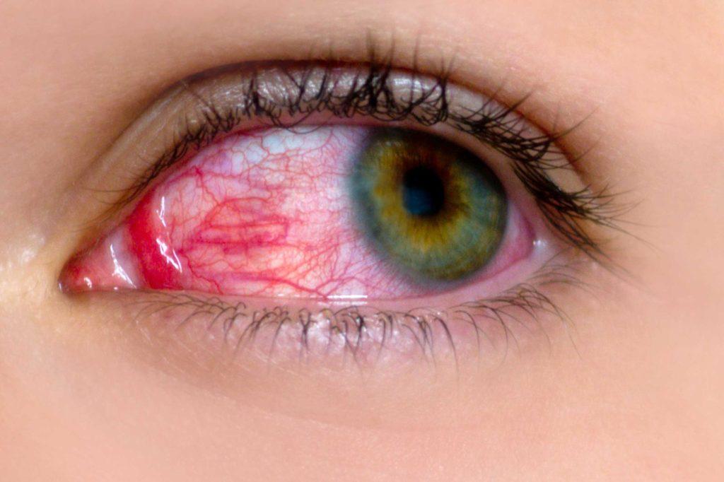 фото катарального конъюнктвиита