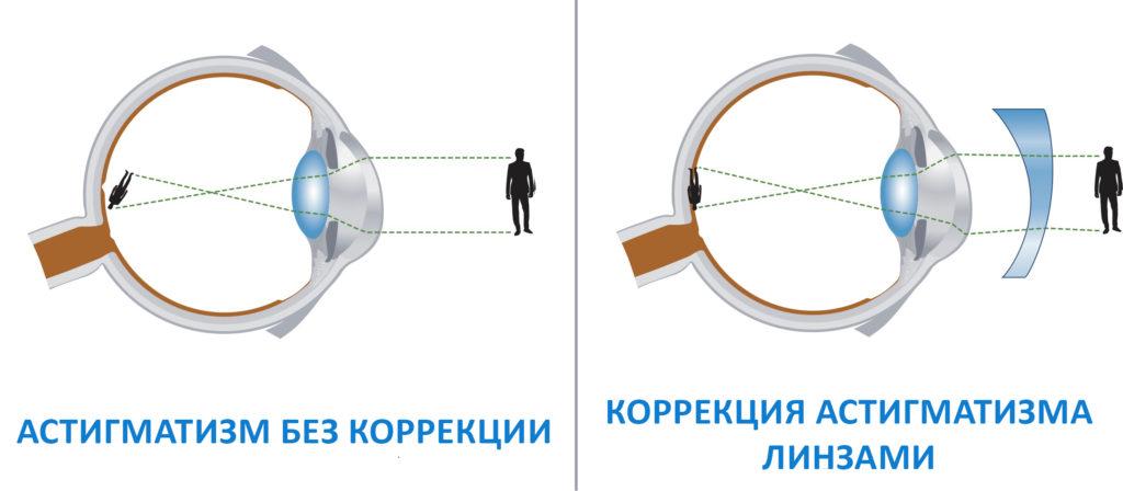 коррекция астигматизма оптикой