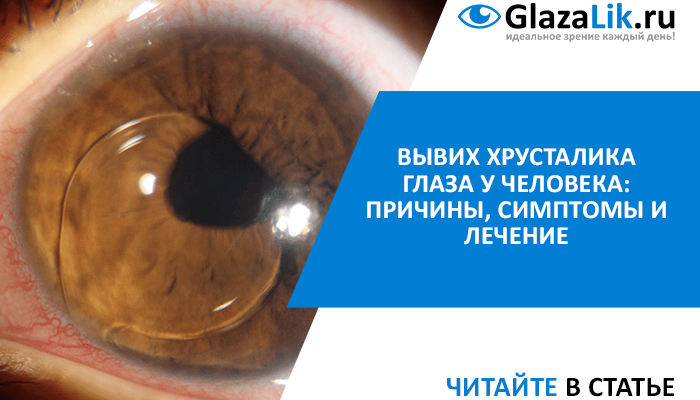 вывих хрусталика глаза у человека