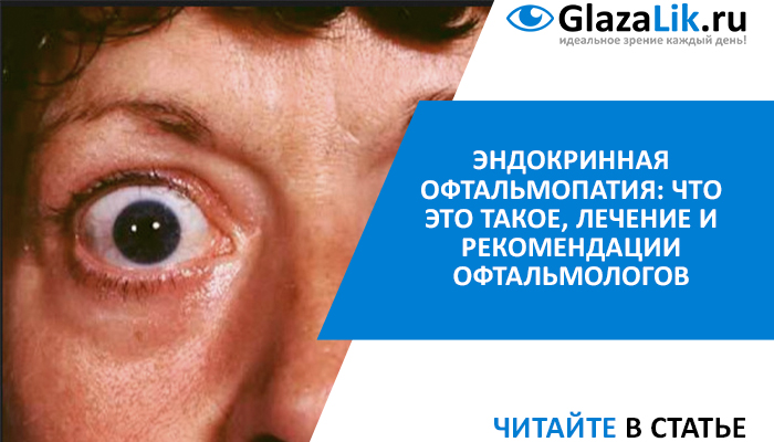 лечение эндокринной офтальмопатии
