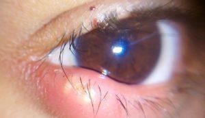 фото ячменя на глазу