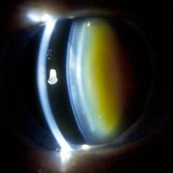 как выглядит ядерная катаракта глаз