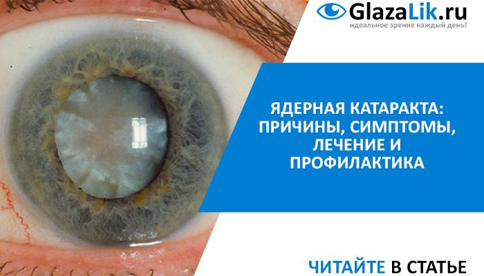симптомы и лечение ядерной катаракты