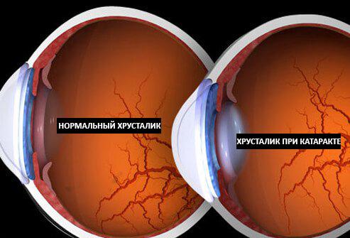 как выглядит хрусталик при катаракте