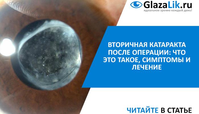лечение вторичной катаракты глаза