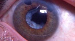 фото глаза со вторичной катарактой