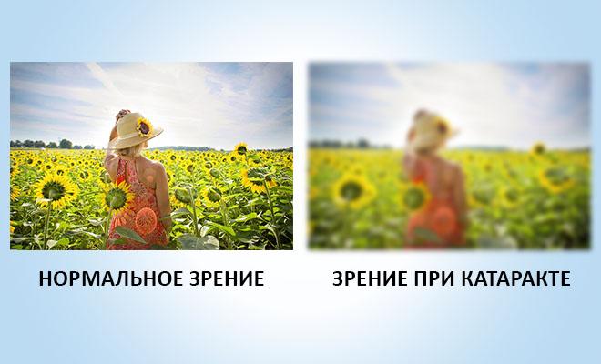 нормальное зрение и при катаракте