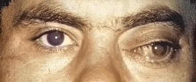 экзофтальм глаза у мужчины