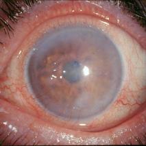 глаз с буллезной кератопатией