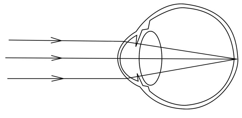 Эмметропиия на схеме