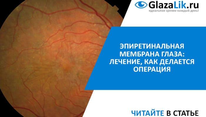 Лечение эпиретинальной мембраны глаза