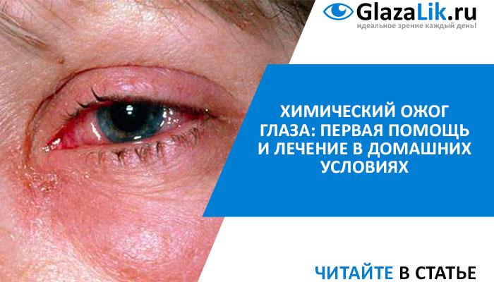 лечение химического ожога глаз