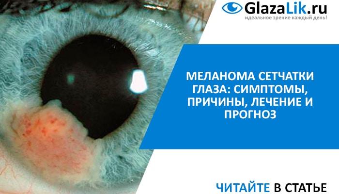 меланома глаз