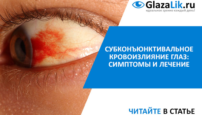 статья о субконъюнктивальном кровоизлиянии