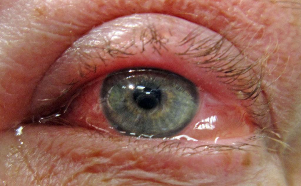 фото аллергического конъюнктивита глаз