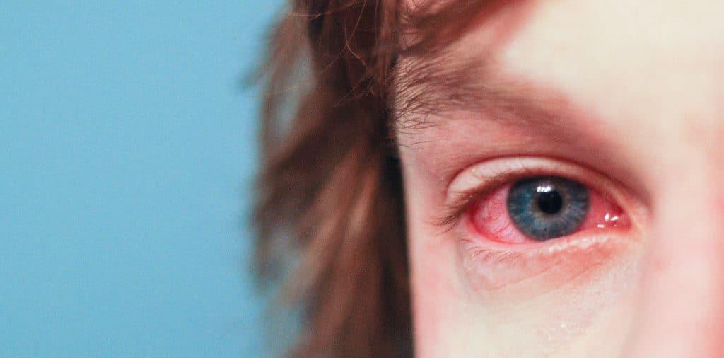 фото аллергии глаз