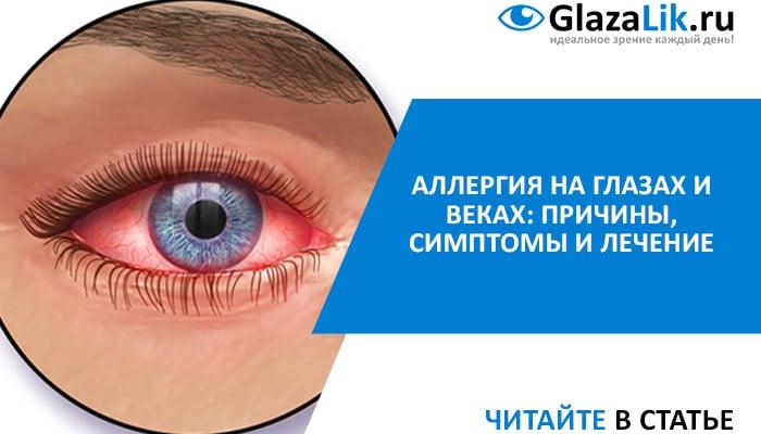 симптомы и лечение аллергии на глазах