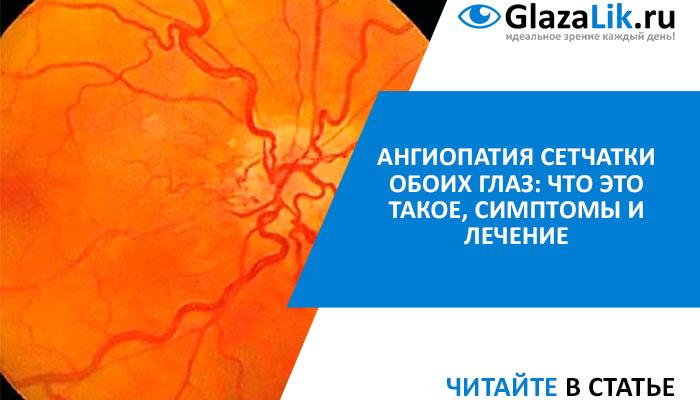 лечение ангиопатии сетчатки глаз