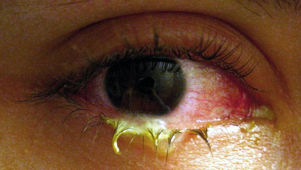 фото бактериального конъюнктивита глаз