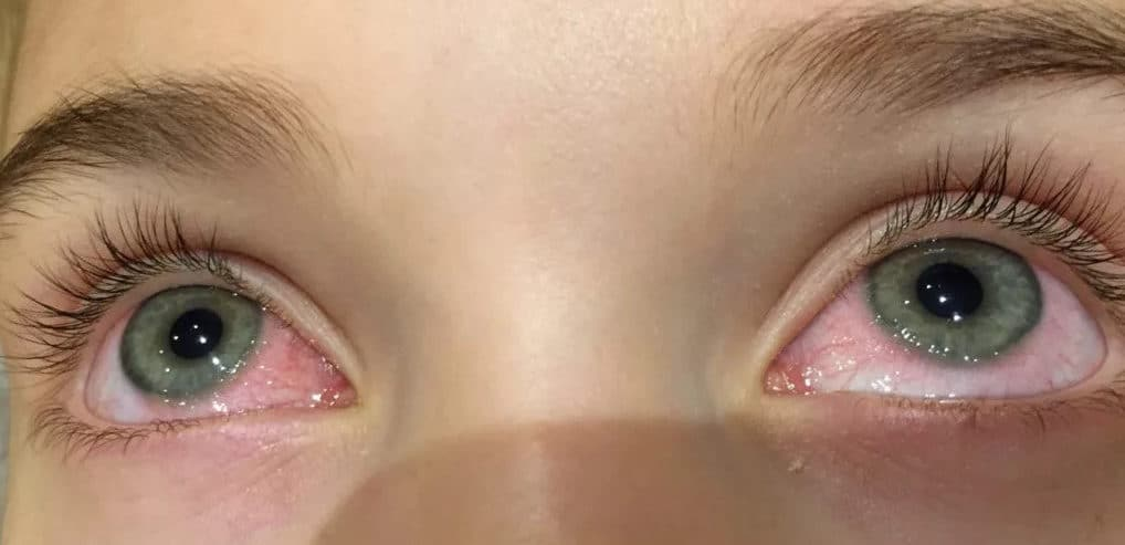 фото глаз с аллергией
