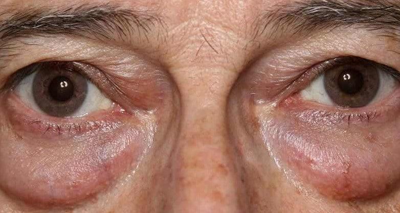 фото грыжи нижних глазных век