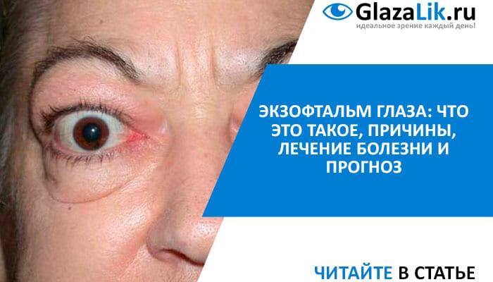 причины и лечение экзофтальма
