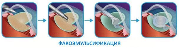 этапы факоэмульсификации