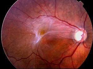 фото фиброза сетчатки