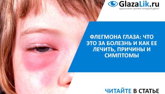 флегмона века глаз