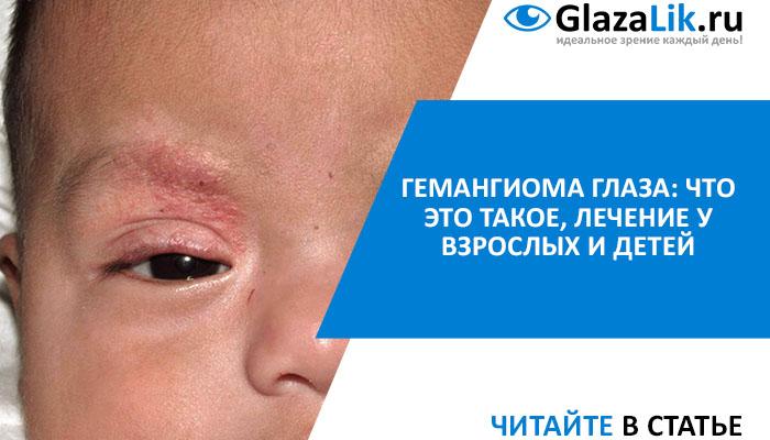 лечение гемангиомы глаз