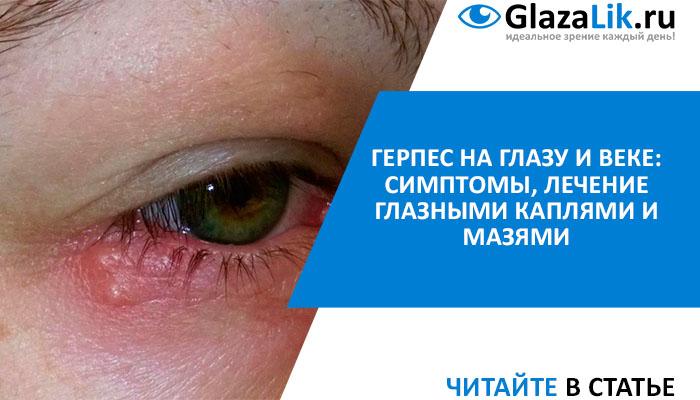 лечение глазного герпеса