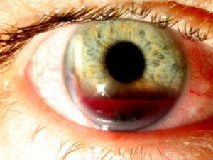 фото гифемы глаза