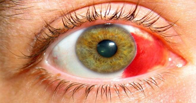 гипосфагма глаз