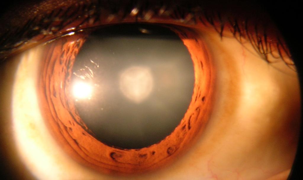 фото глаза с катарактой