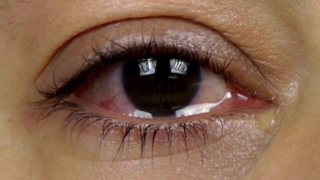 glaz slezitsya 1024x576 - Ожог глаз ультрафиолетовой лампой что делать