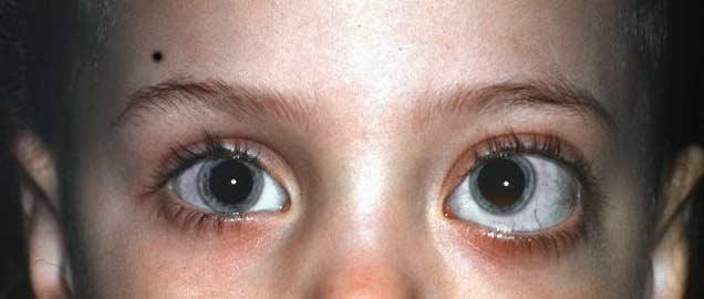 глиома зрительных нервов